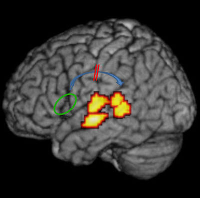 Mapping Dyslexia