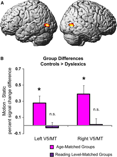 Abnormal visual processing is not a cause of dyslexia.
